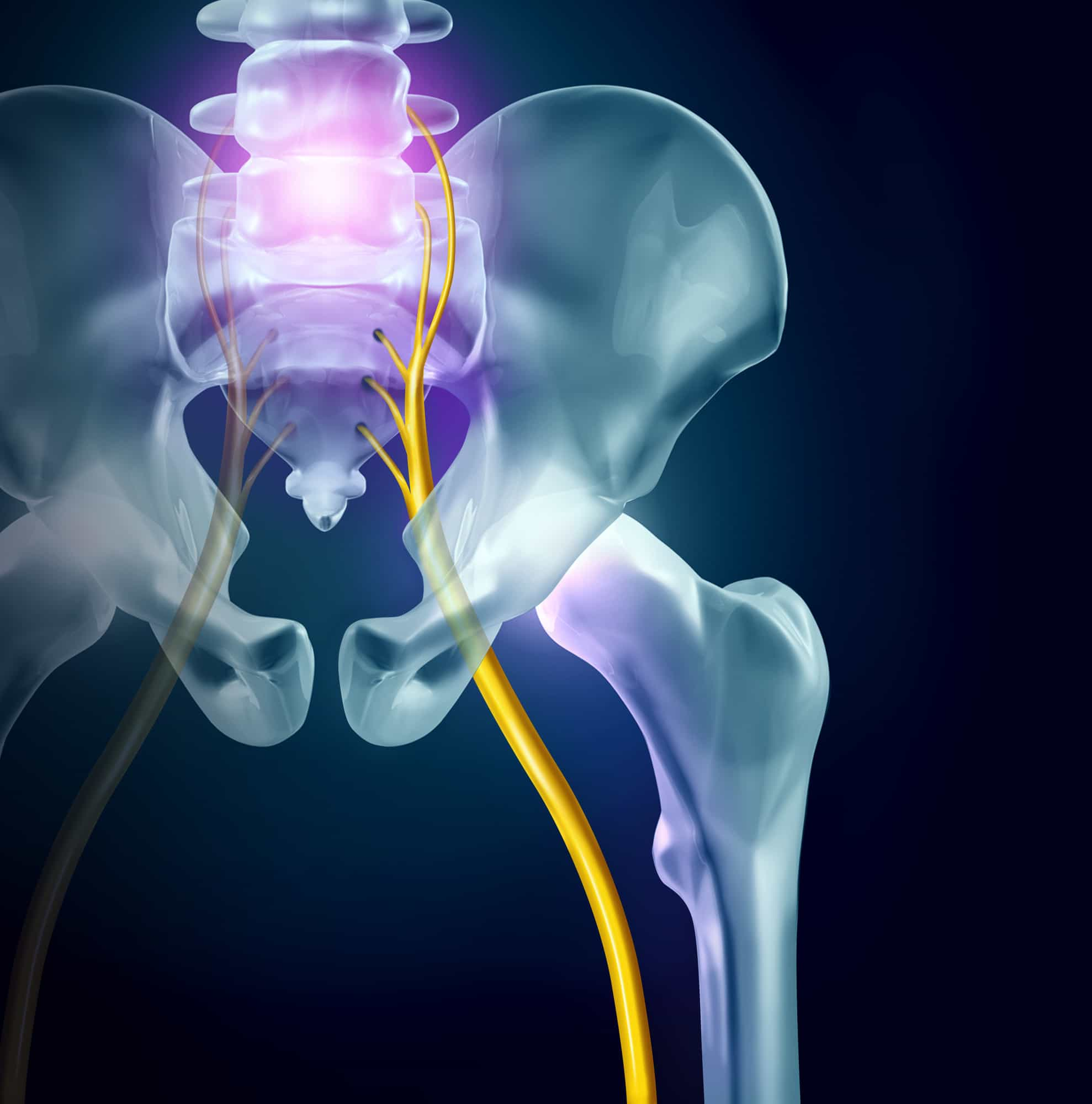 Sciatica vs. Back Pain – What's the Difference?